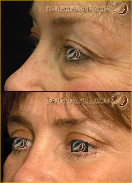 Segni dinvecchiamento della persona alla donna gli occhi delluomo